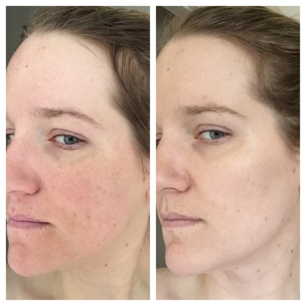 adult acne before and after unblemish rodan and fields