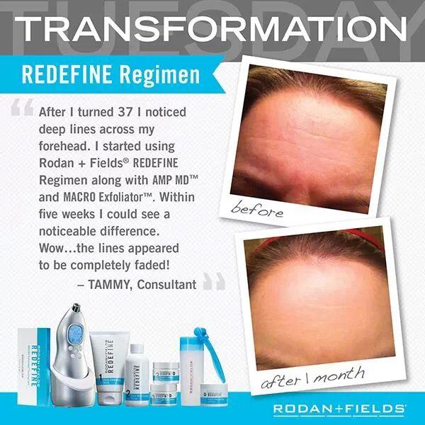 Transformation Redefine Before + After 2