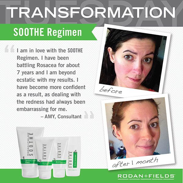 Transformation Soothe Before + After